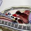 La médiastinoscopie : une endoscopie chirurgicale développée à Grenoble en 1963. Témoignage de Roger Sarrazin collecté en 2000.