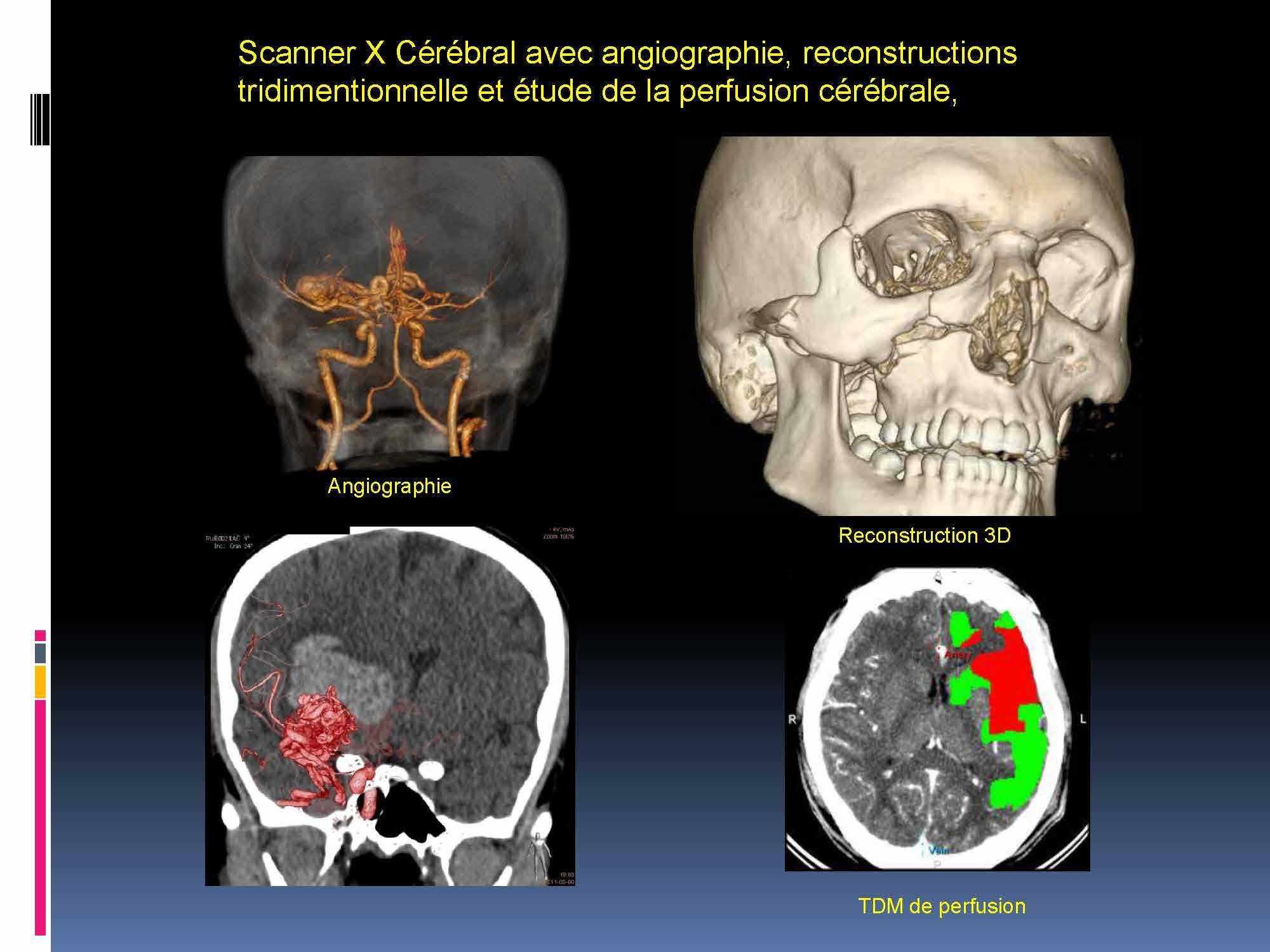 Imagerie médicale Lyon 5-12 -2017_Page_12