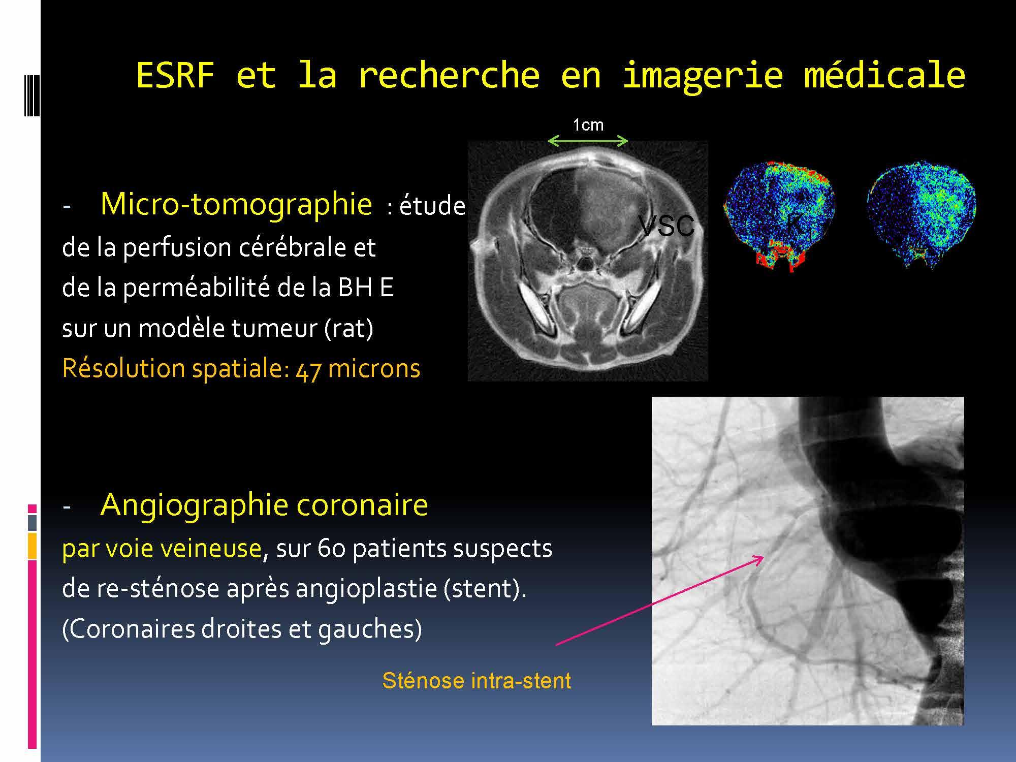 Imagerie médicale Lyon 5-12 -2017_Page_19