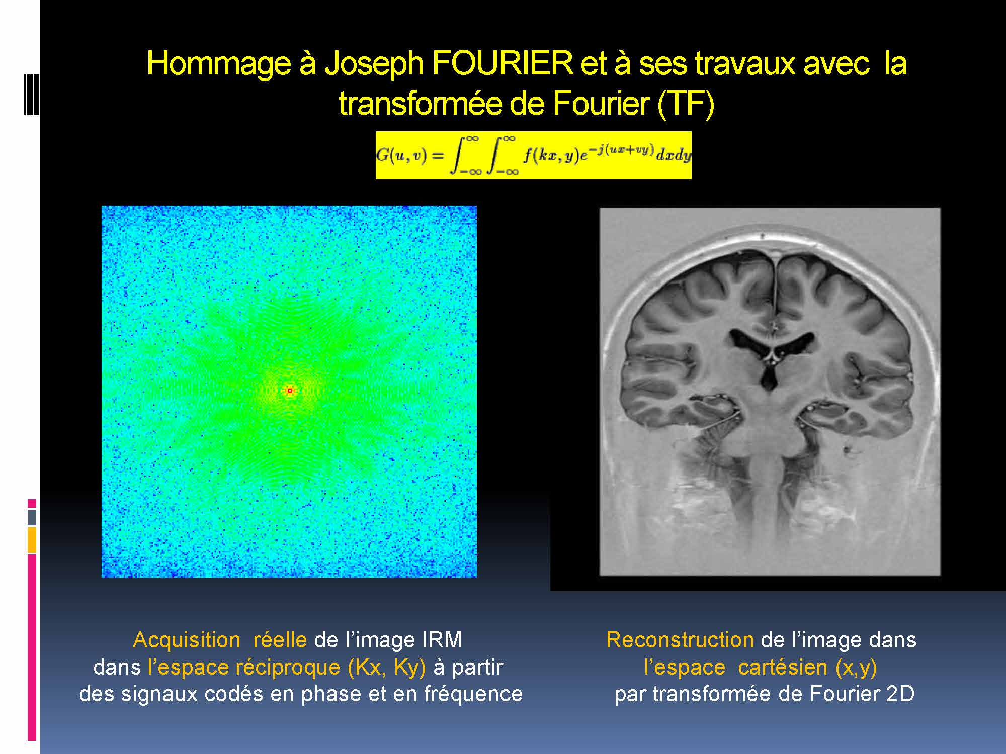 Imagerie médicale Lyon 5-12 -2017_Page_35